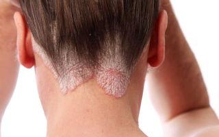 Микоз волосистой части головы