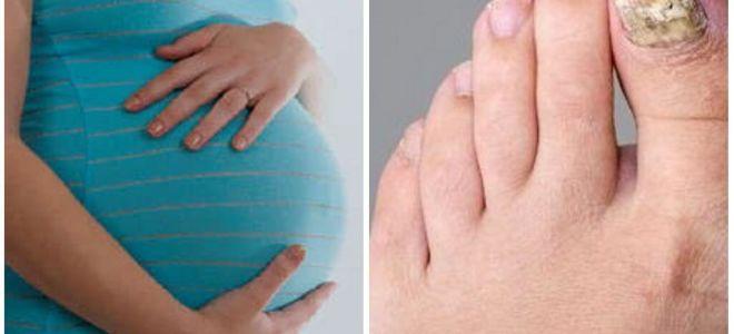 Лечение грибка ногтей при беременности