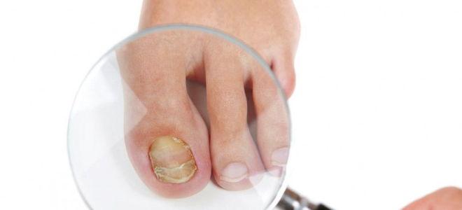 Борная кислота против грибка ногтей