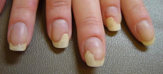 Грибок ногтей на ногах как выглядит чем лечить