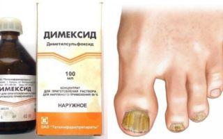 Димексид от грибка ногтей