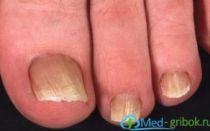 Дрожжевой грибок ногтей: лечение и профилактика