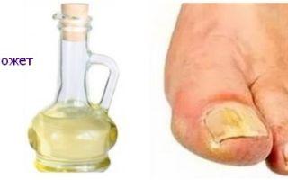 Методы лечения грибка ногтей уксусом