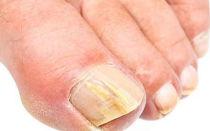 Как размягчить ноготь пораженный грибком