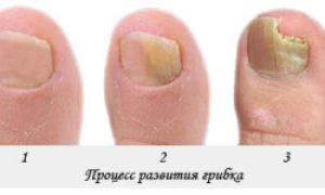 Грибок ногтей и кожи на ногах