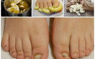 Средство от грибка ногтей на ногах — эффективные препараты и народные средства