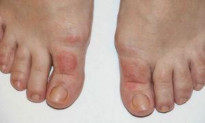 На пальцах ног появились пузырьки и чешутся