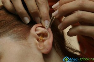 лечение грибка в ушах