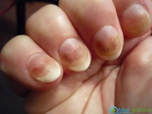 Лечение грибка ногтей после наращивания