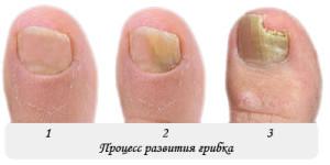 Процесс развития грибка на ногах