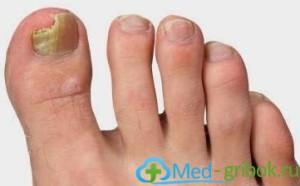 Фото дрожжевого грибка на ногтях