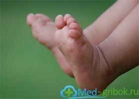 Грибок стопы и у детей