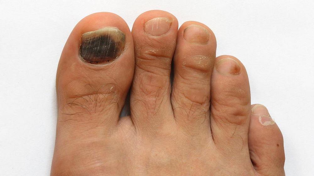 Как распознать грибок ногтей на ногах