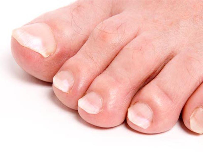 Сахарного диабета и ногти на руках