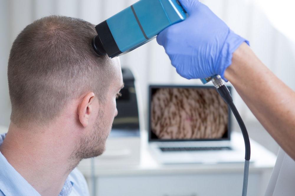 диагностика алопеции при сифилисе