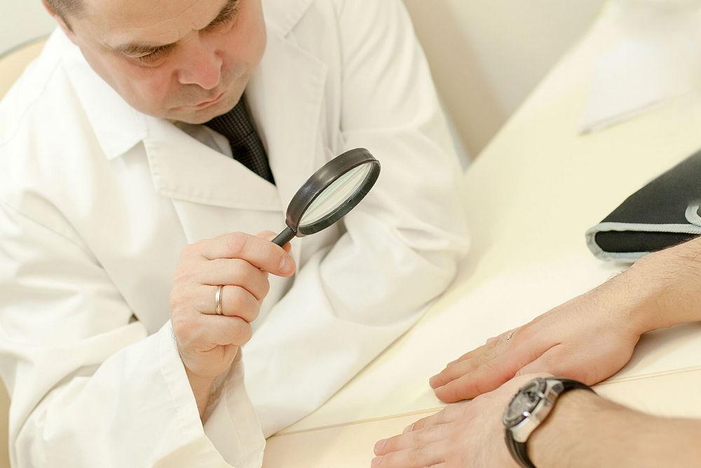 миколог осматривает кожный покров