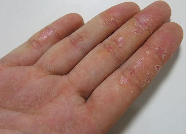 Как вылечить псориаз на ногтях в домашних условиях