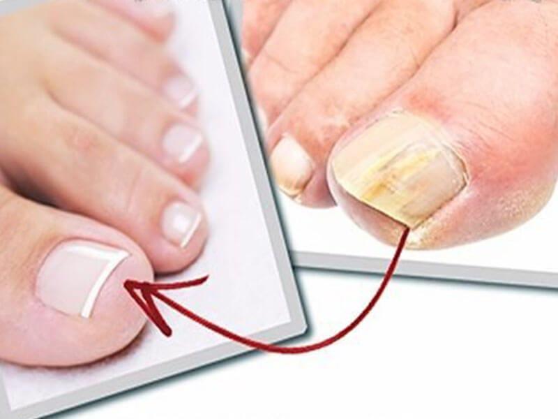 Перекись водорода против грибка на ногтях