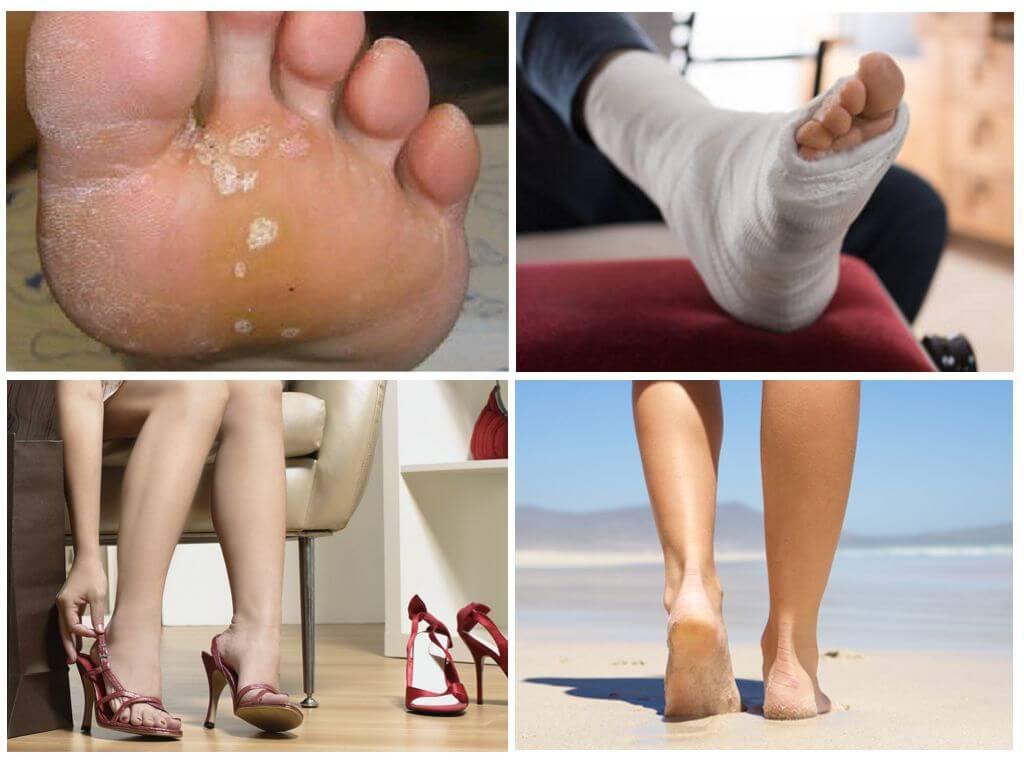 Грибок на ногах причины возникновения признаки рецепты