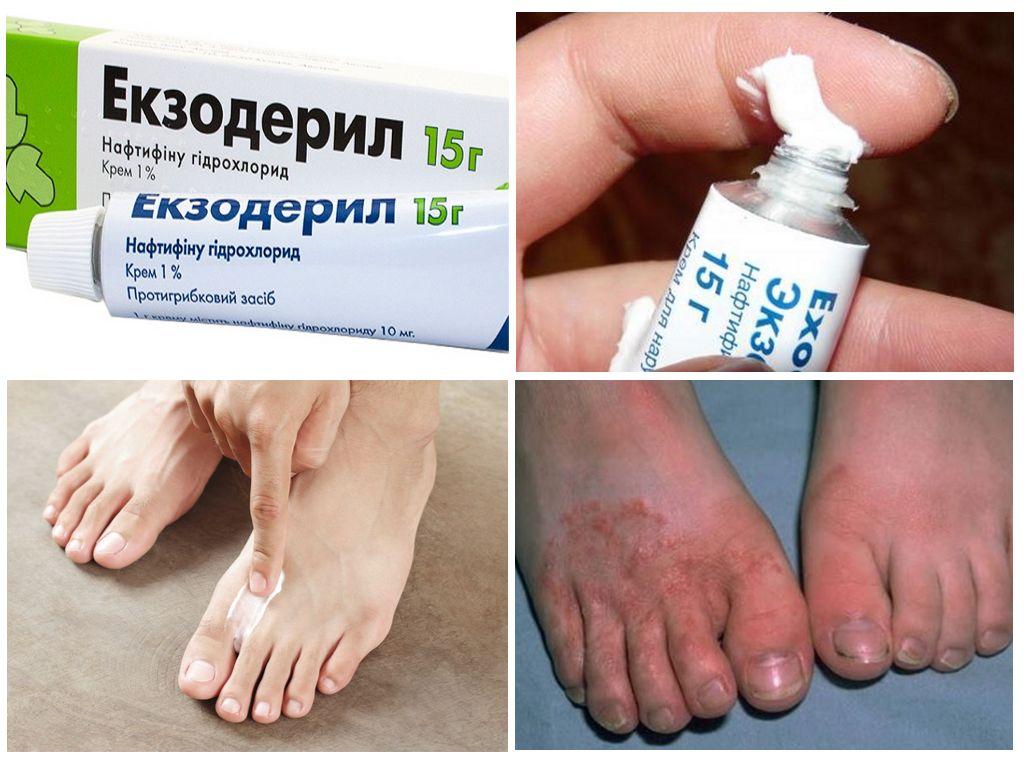 Грибок ногтей - лечение препараты
